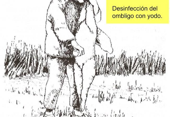 Desinfección de ombligo con yodo