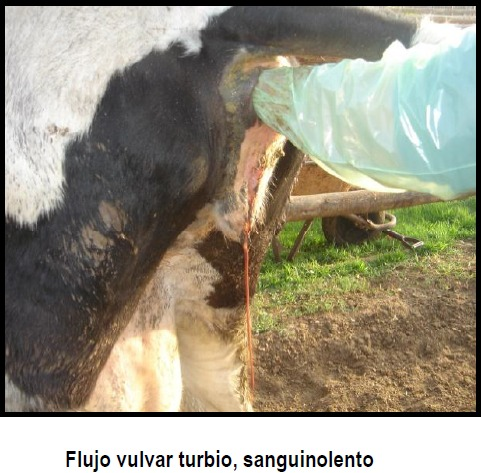 flujo vulvar turbio sanguinolento
