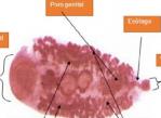 Calicophoron-microbothrioides-en-lámina