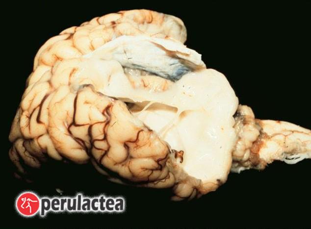 Hipoplasia_Cerebelar_10