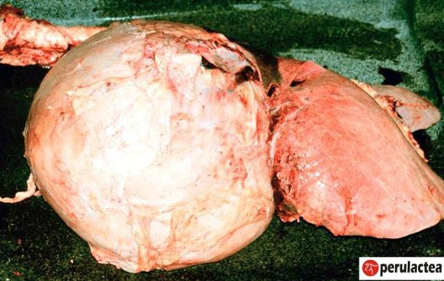 pericarditis_por_cuerpo_extraño_o_vaca_clavada_16